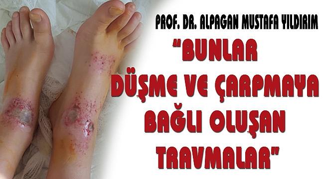 """""""BUNLAR DÜŞME VE ÇARPMAYA BAĞLI TRAVMALAR"""""""